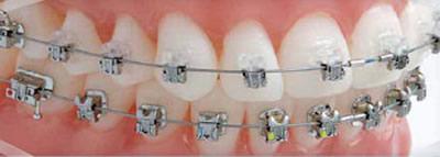 damon braces at Cavan Braces